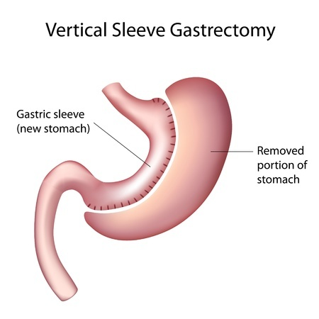 Memphis And Mid South Area Gastric Sleeve Surgeon Call 662 536